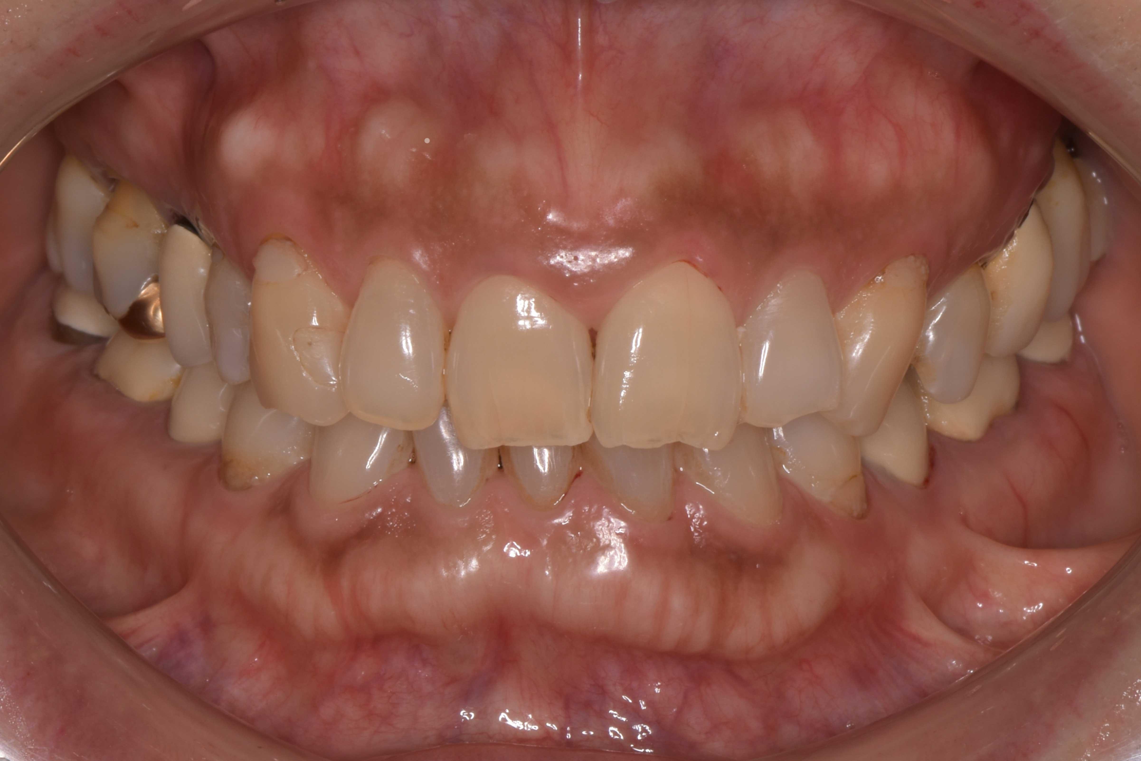 検査時_前歯