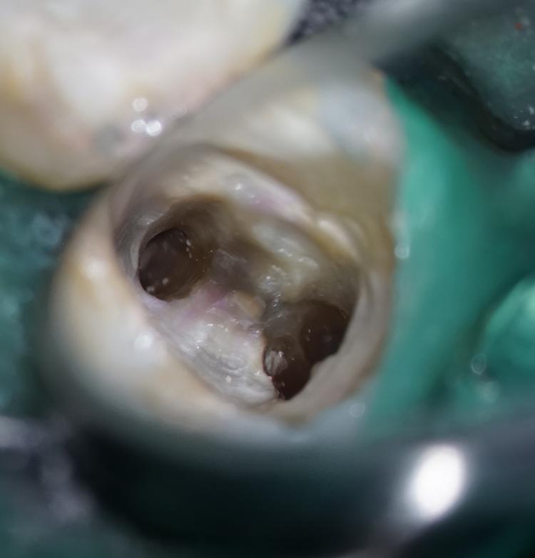 根管治療による根尖病巣の改善1