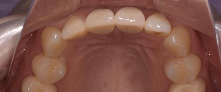 歯科金属アレルギーとメタルフリー審美歯科
