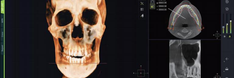 3D シミュレーション画面